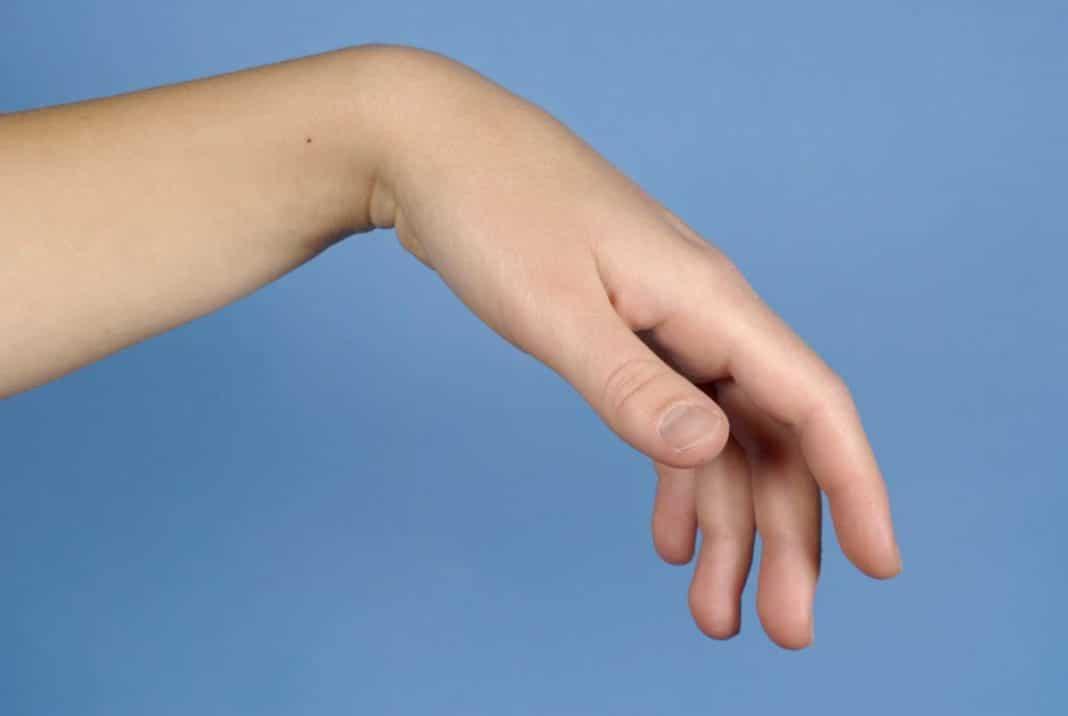 fájdalom a kéz ízületeiben, mint hogy kezeljék hátfájás torna