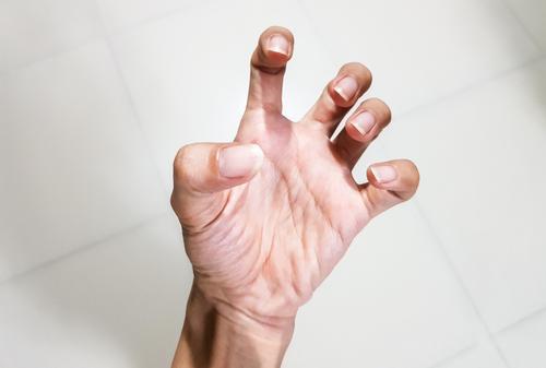 fájdalom a kéz ízületeiben, mint hogy kezeljék kondroitin és glükózamin beadása