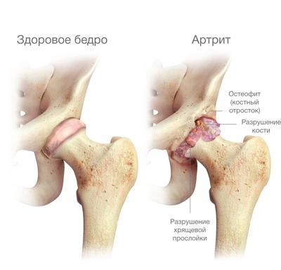 fájdalom, amikor feláll a csípőízület