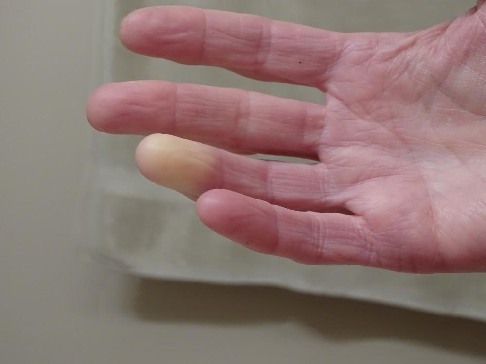 Fájnak az ujjak ujjai. Bütykös ujj? A Heberden-szindróma fájdalma kezelhető!
