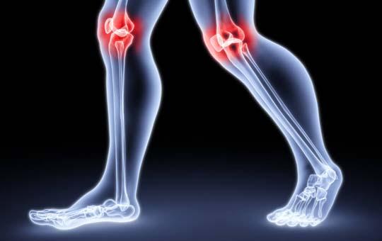 hogyan lehet a guggolást a térd artrózisával helyettesíteni
