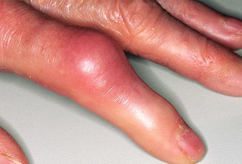 6 hónapos csípő dysplasia kezelés a láb ízületeinek gyulladása hogyan kell kezelni