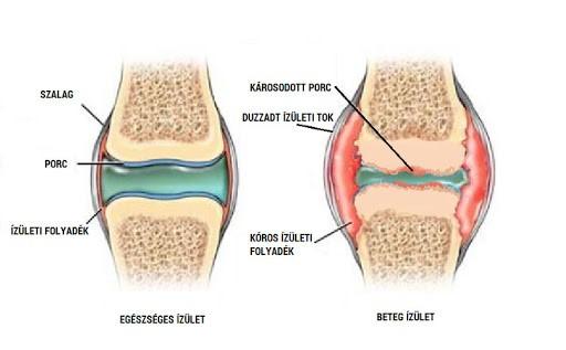 a kenőcsök segítenek e az osteochondrosisban izomízületek ízületek fájnak