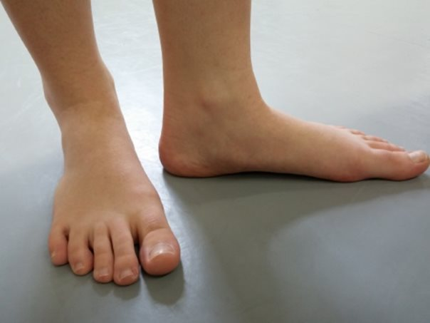áthaladó fájdalom a lábak ízületeiben térdfájás lelki okai kinai