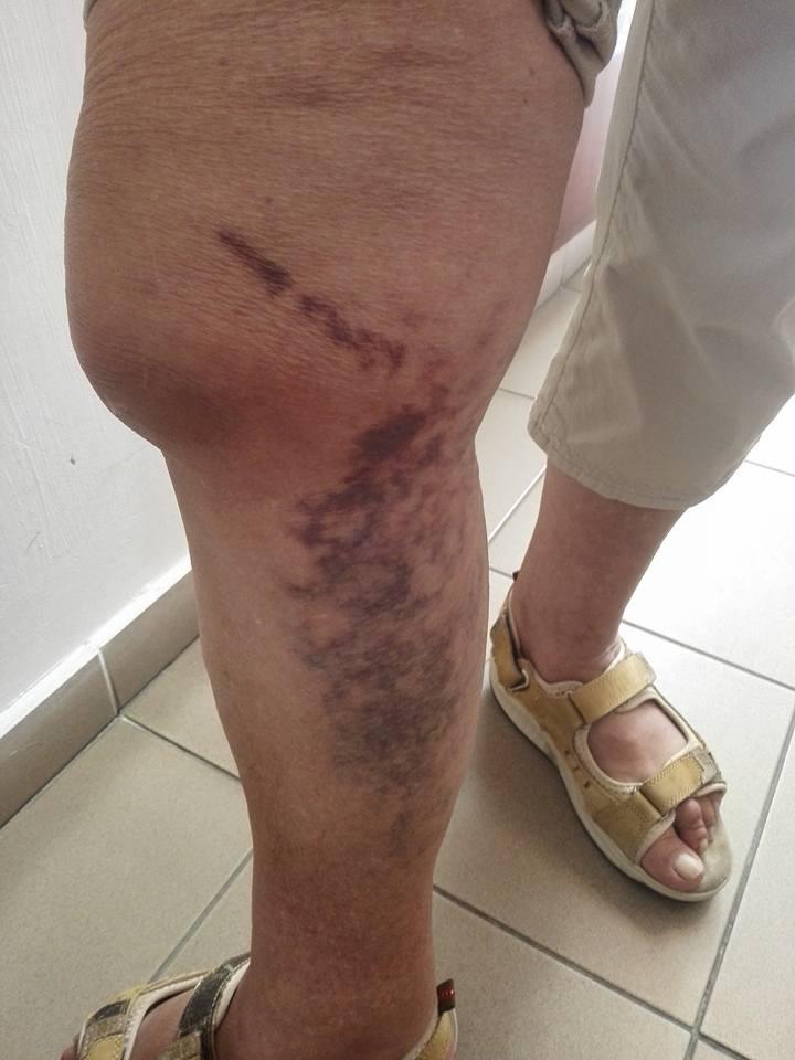 lábfej zúzódás gyógyulási ideje típusú ízületi gyulladások