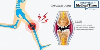 térdfájdalom oka nyaki osteochondrozis kezelése nőknél
