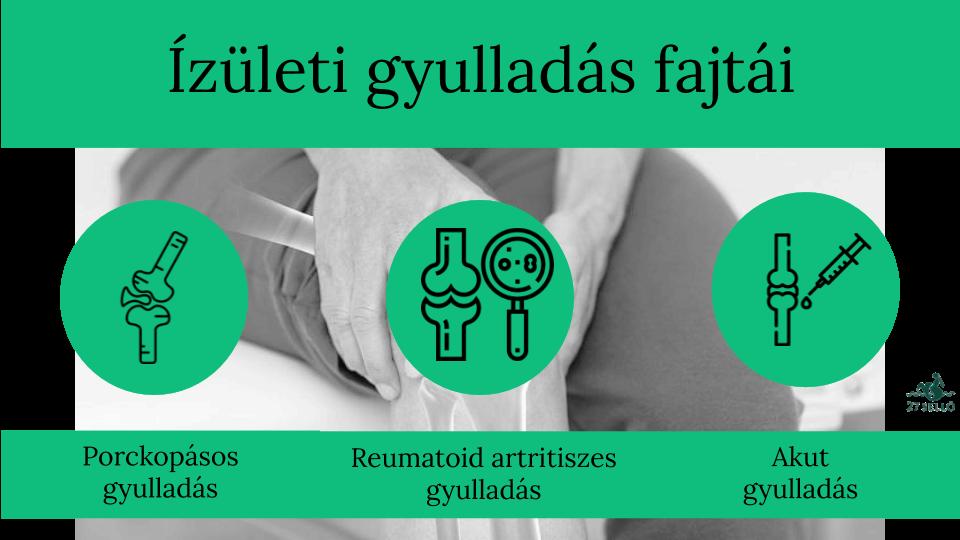 áttekintést ad arról, hogyan és hogyan lehet kezelni az ízületi gyulladást baikális ízületi kezelés